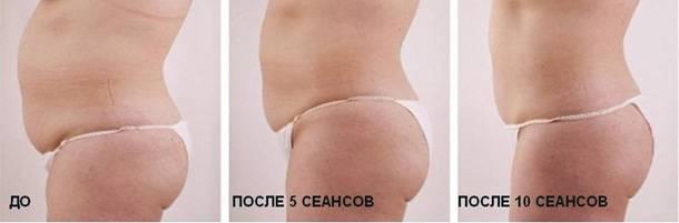 3 нехирургических метода коррекции фигуры