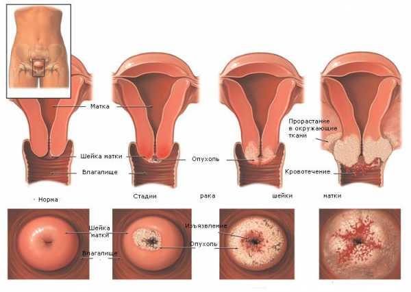 Рак шейки матки: как проявляется патология, методы профилактики и лечения, прогноз выживаемости