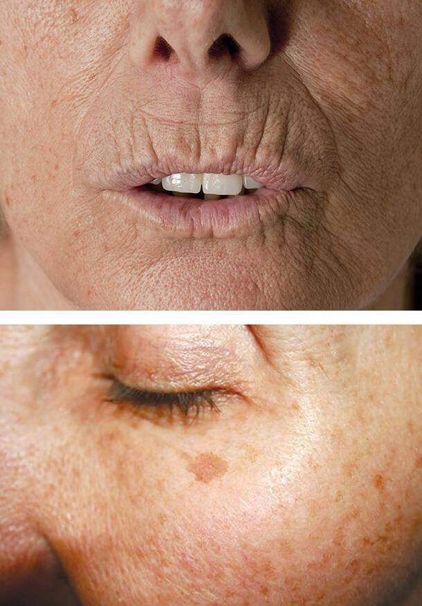Фотостарение кожи – что это и как избежать?