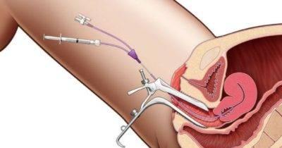 Как удаляют полипы в матке — операция по удалению