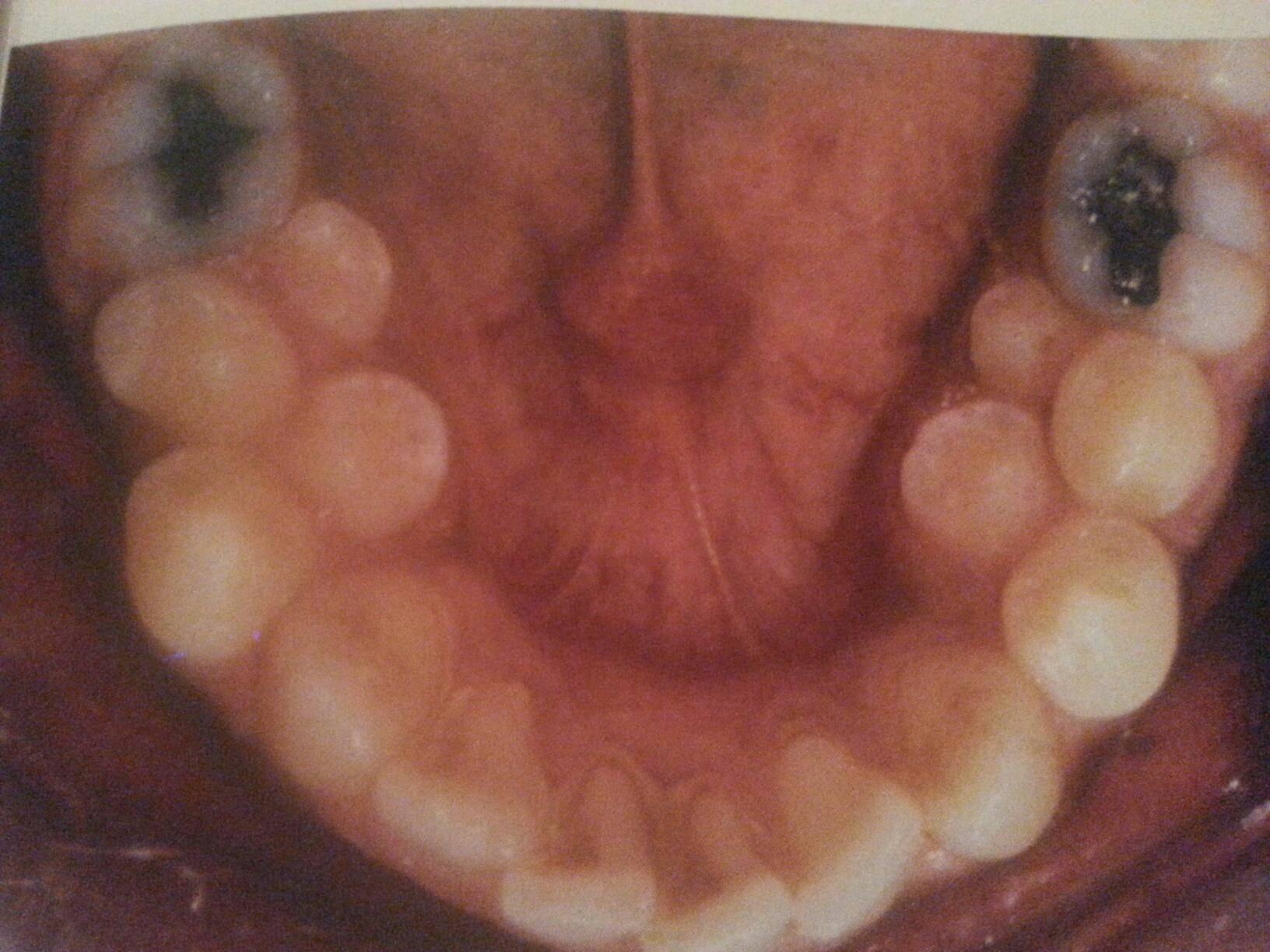 Полиодонтия