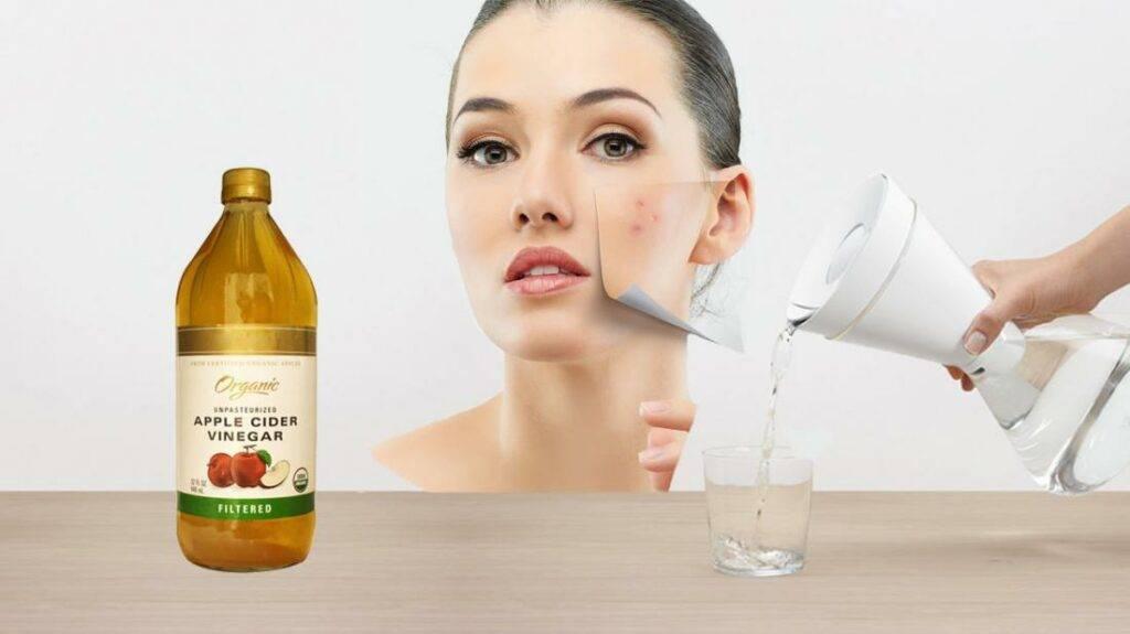 Яблочный уксус для лица в косметологии: от морщин, прыщей