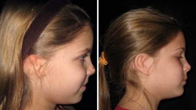 Врожденные деформации и реконструкция ушной раковины