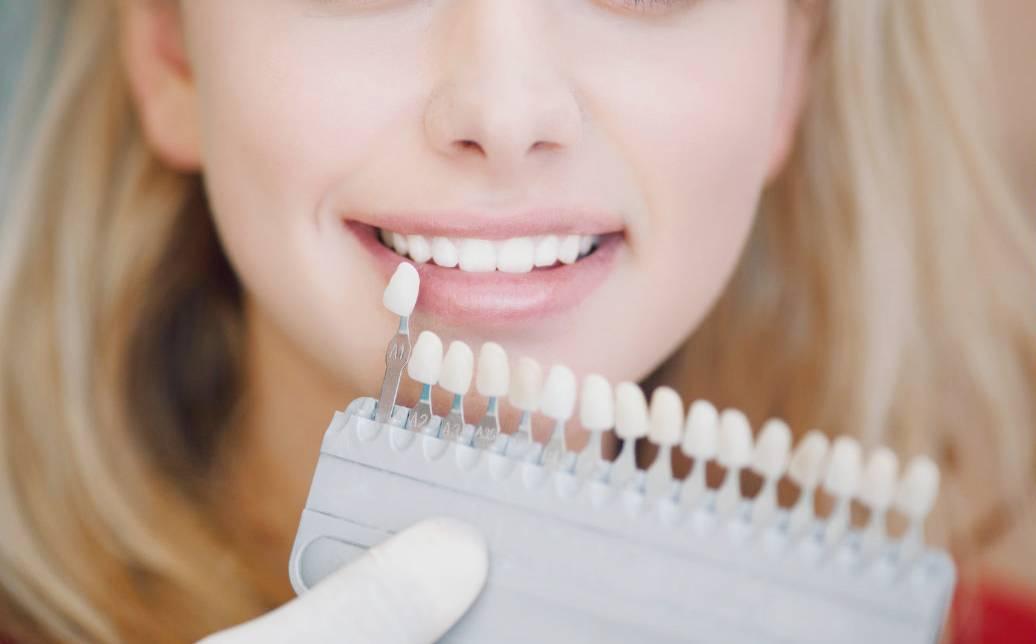 Вредно ли отбеливать зубы в стоматологии