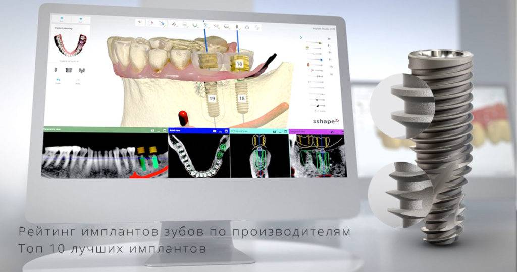 Лучшие зубные импланты — обзор