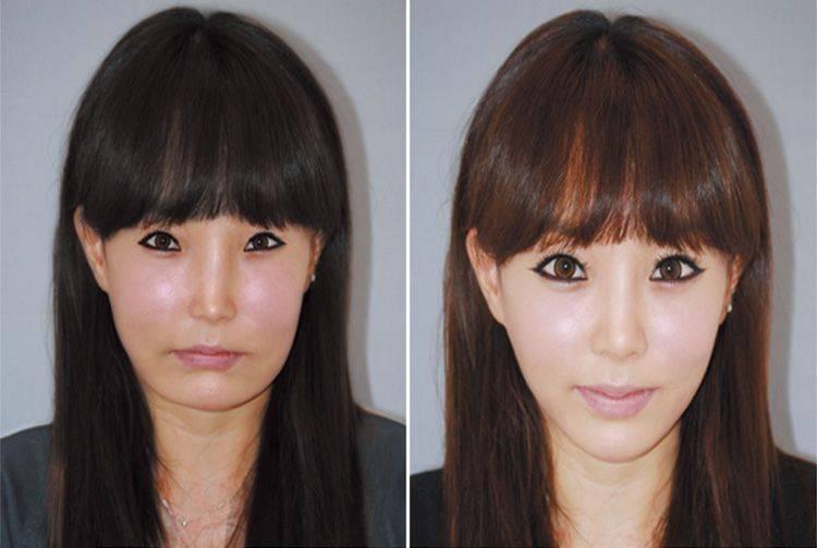 Ринопластика — где и как выполняется пластическая операция на нос. фото до и после.