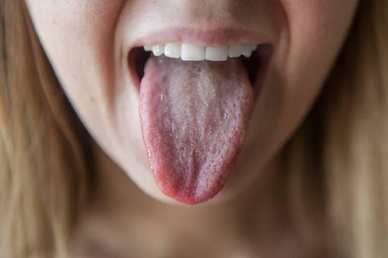 Сильно сохнет во рту ночью? — ксеростомия: причины и лечение