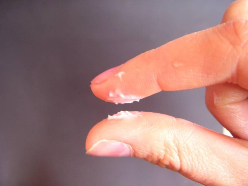 Выделения при хламидиозе у женщин - какие бывают до и после лечения?