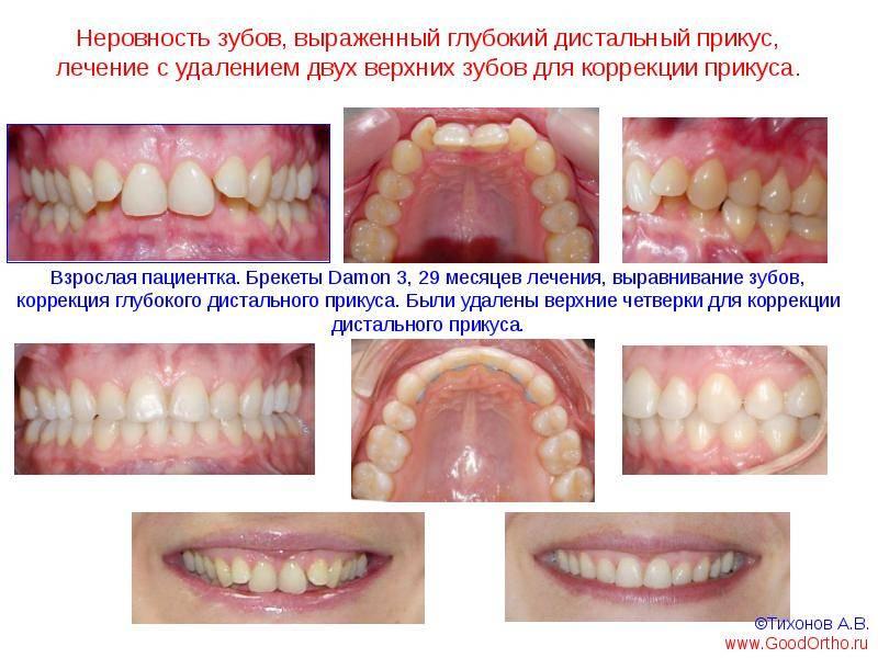 Патологический (неправильный) прикус зубов у взрослых и детей