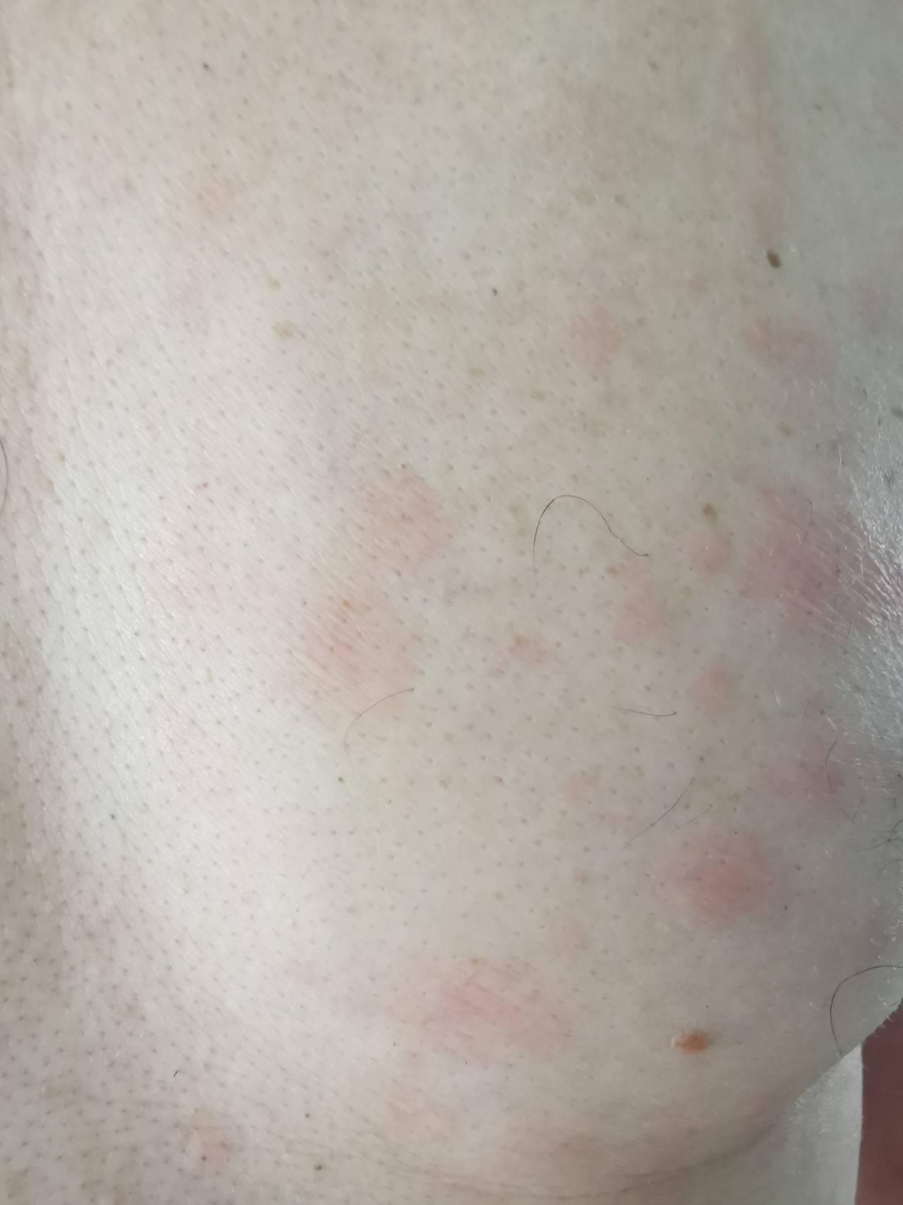 Как выглядят пигментные пятна на теле на фото и как их лечить?