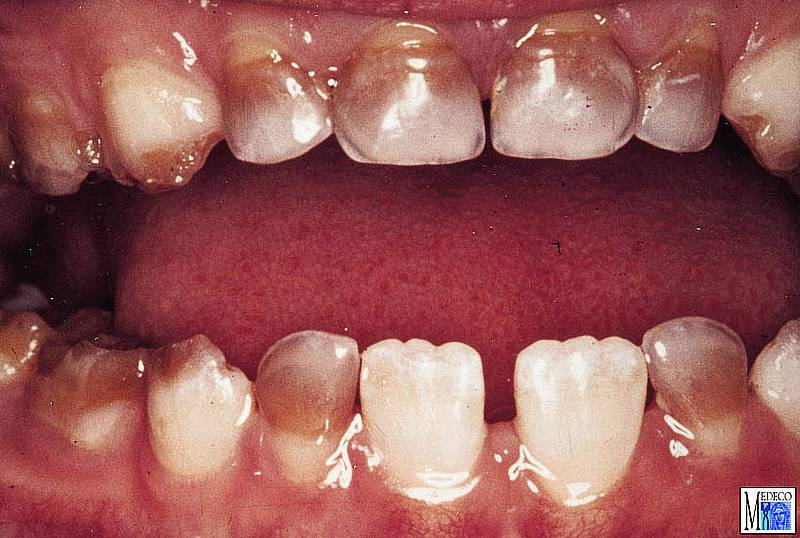 Чем опасна гипоплазия эмали зубов у детей – лечение и причины