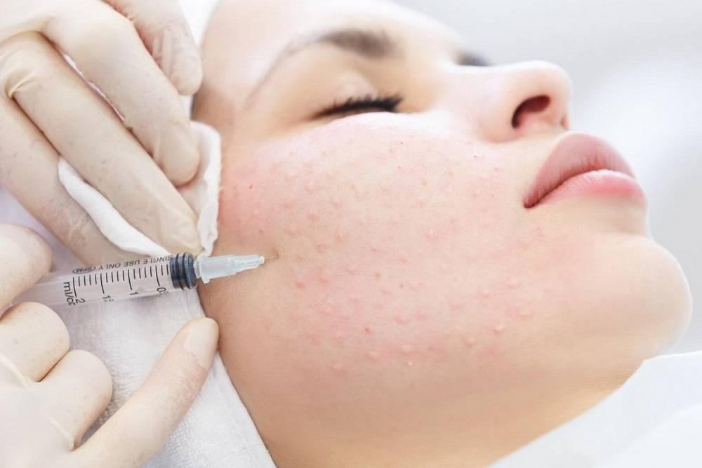 Реви брилианс биоревитализант. цена процедуры, отзывы косметологов