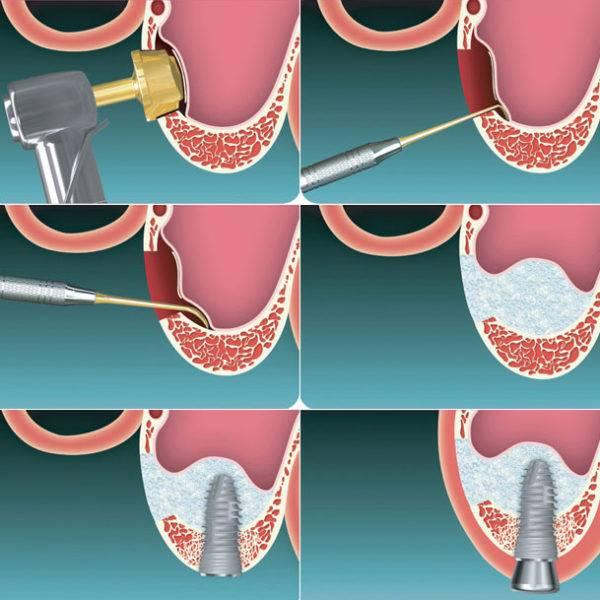 Где берут костную ткань для имплантации