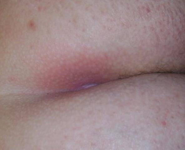 Почему появляются язвы на половых губах и как от них избавиться