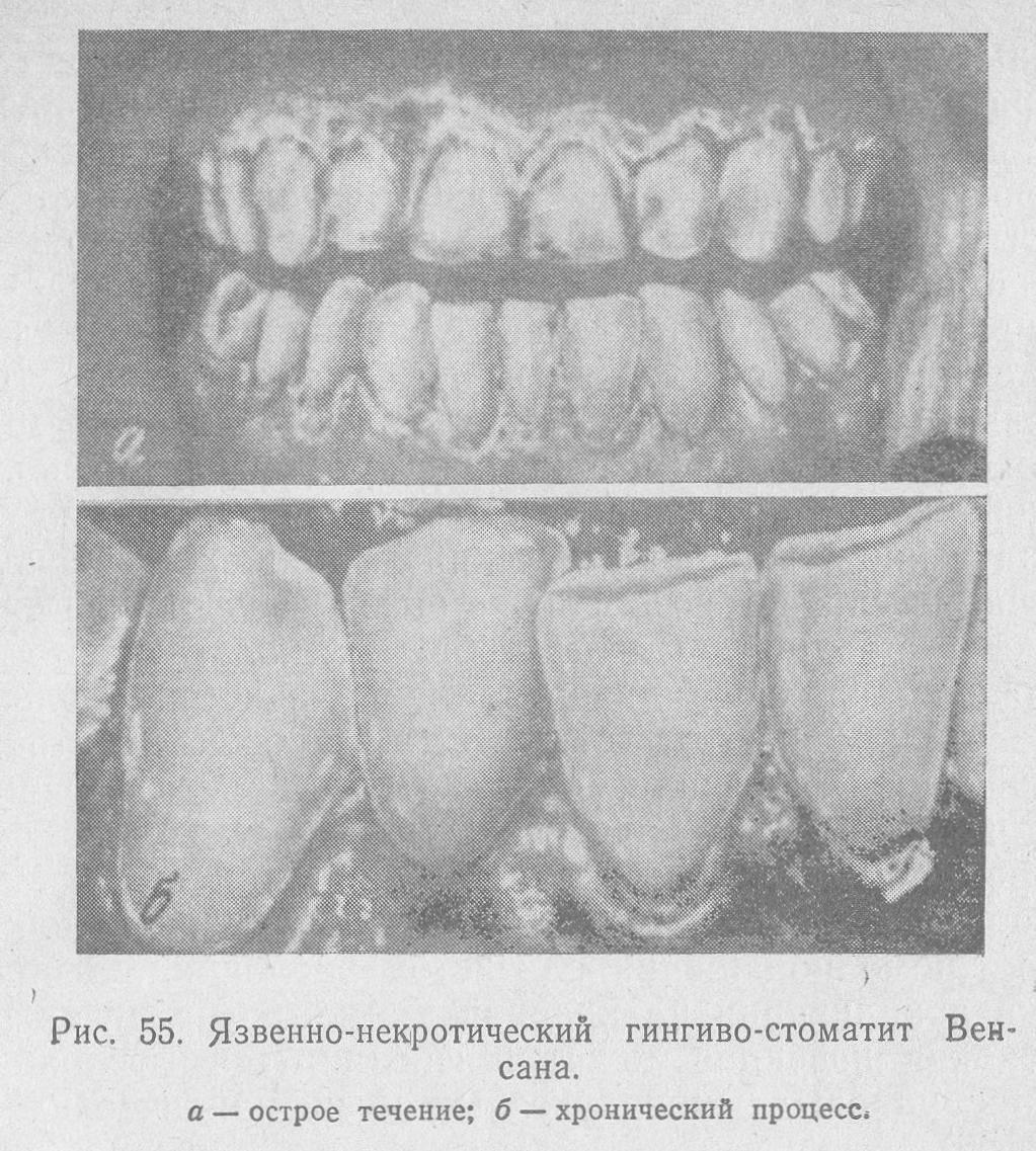 Язвенный гингивит (венсана)