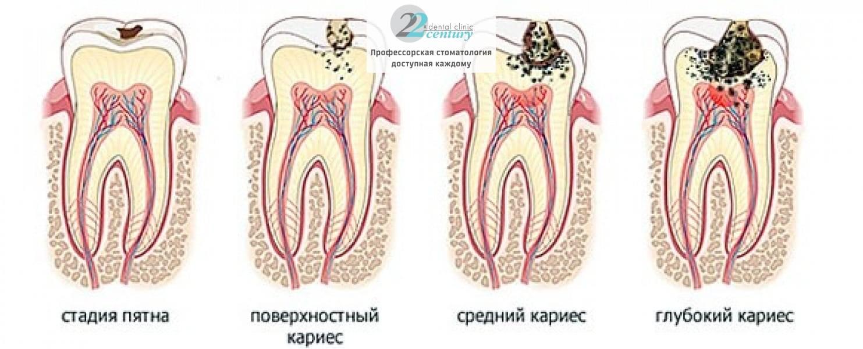 Периодонтит зуба – что это такое, симптомы и лечение, фото