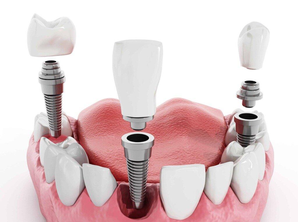 Что выбрать для замены зуба — штифт или дентальные импланты?