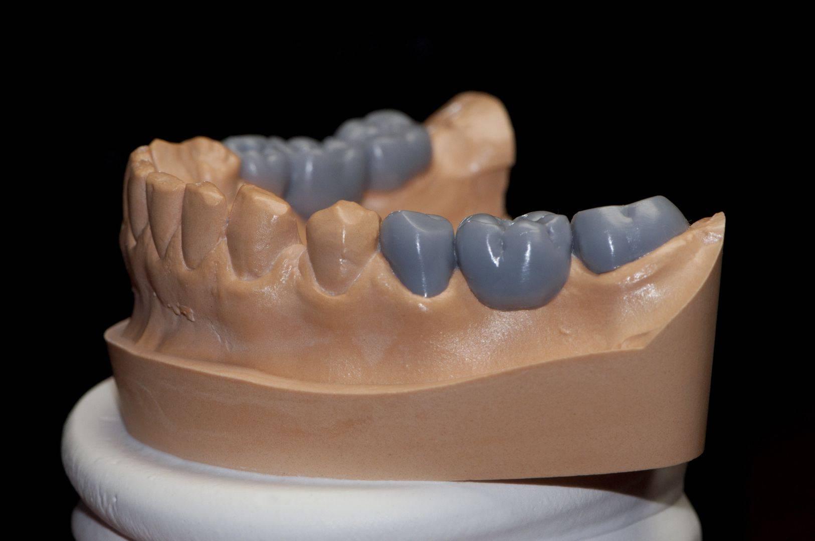 Особенности методики воскового моделирования зубов