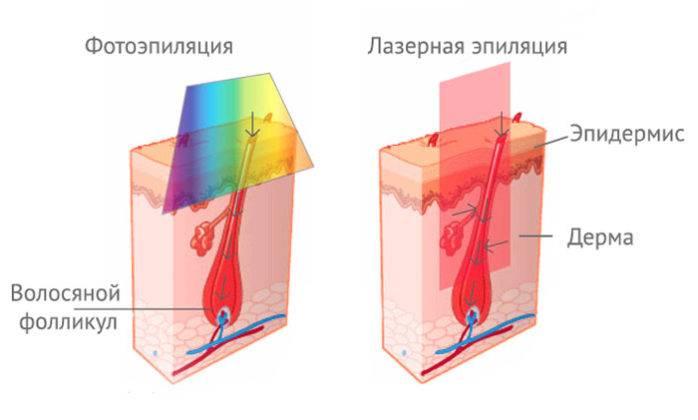 Что лучше — фотоэпиляция или лазерная эпиляция: поможем определиться