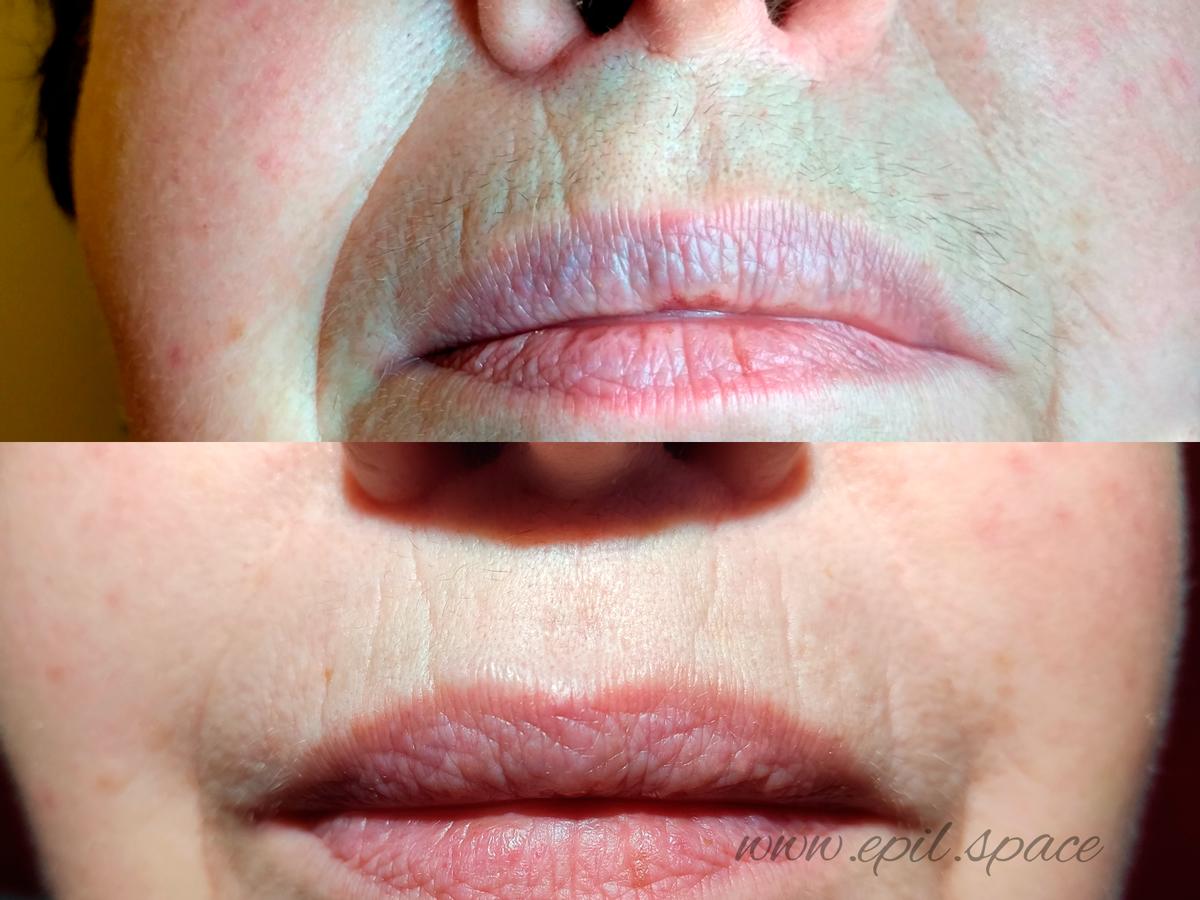 Как убрать усики над верхней губой у девушки. пикантная женская проблема – усы. можно избавиться от них навсегда