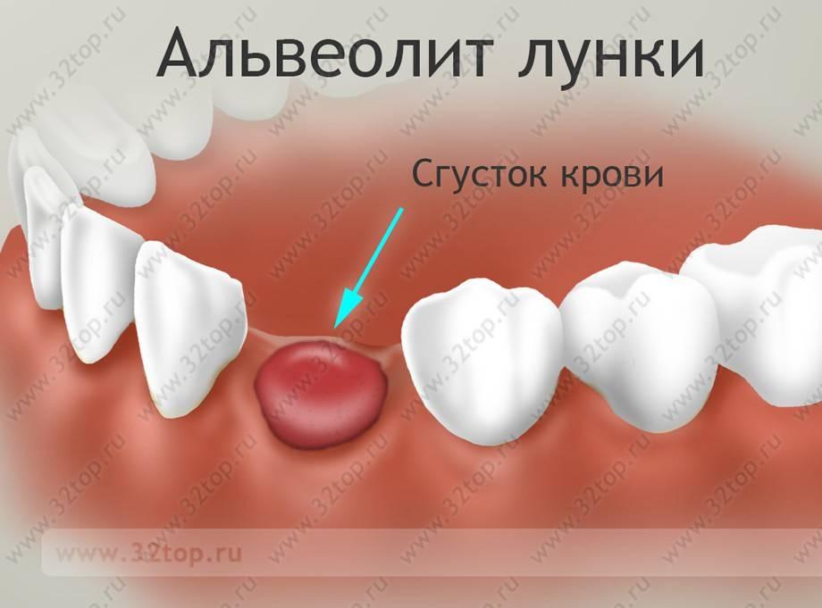 Этапы заживления лунки после удаления зуба и возможные осложнения