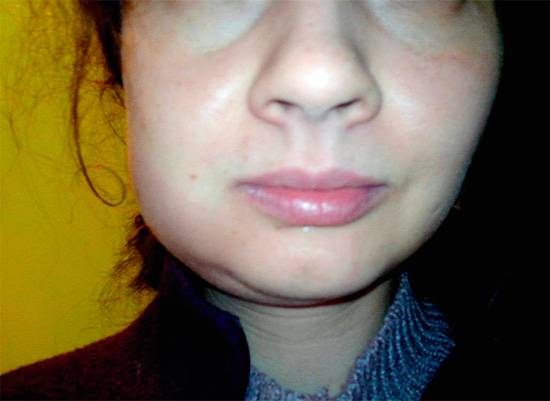 Отек после операции на лице