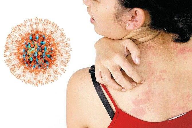 Осторожно, вирус! когда возникает и чем опасен герпесный стоматит у детей?