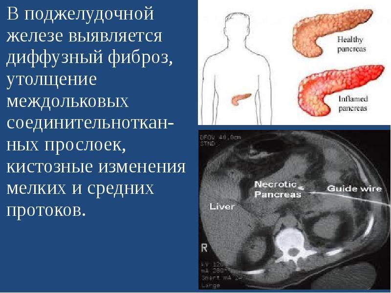 Диффузно дистрофические изменения поджелудочной железы