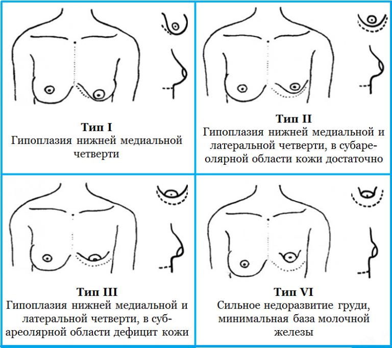 Что такое птоз молочных желез: псевдоптоз и степени мастоптоза