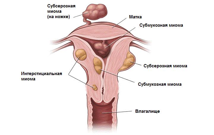 Причины и лечение фиброматоза матки