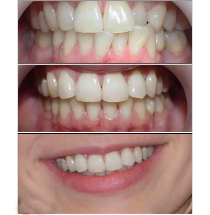 Клкт или конусно-лучевая компьютерная томография челюстно-лицевой области в стоматологии: в чем суть процедуры?
