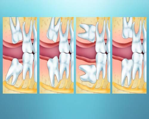 Температура после удаления зуба: о чем это говорит
