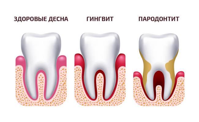 Дистопия, ретенция зубов: причины, симптомы, что делать