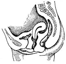 Загиб матки кпереди или антефлексия: особенности явления