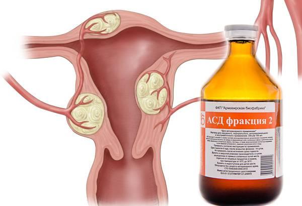 О применении народных средств при лечении аденомиоза матки