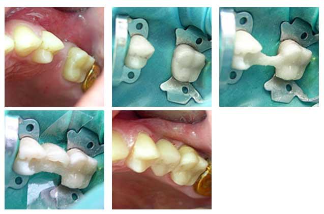 После удаления зуба: когда можно протезировать – all-on-4, мосты, импланты