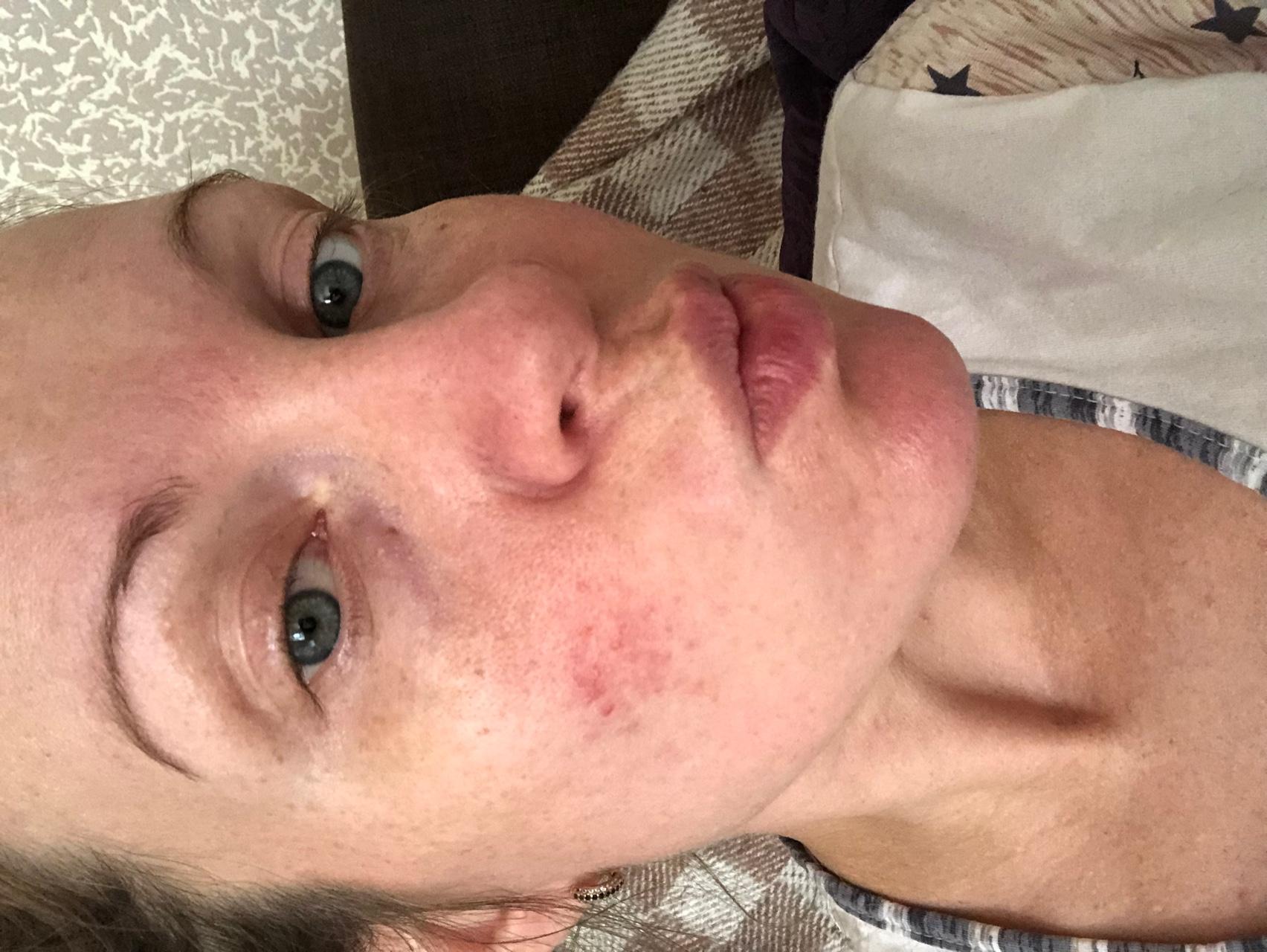 Причины появления розацеа на лице и способы лечения
