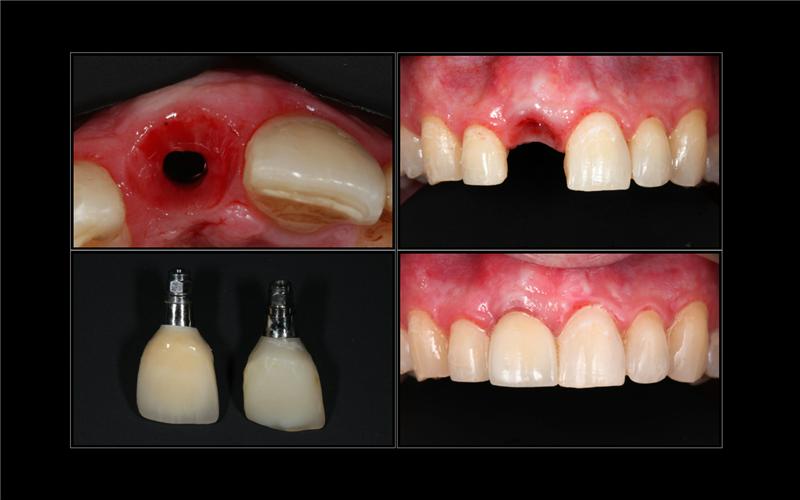 Какую коронку лучше выбрать для установки на зубной имплант