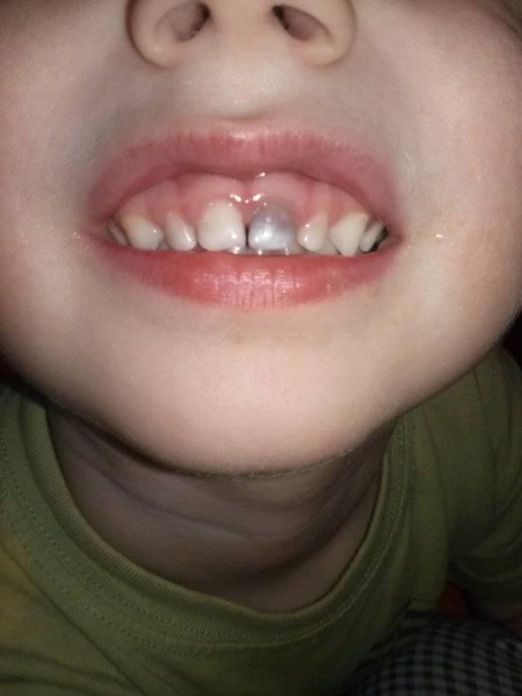Что делать если у ребенка опухла верхняя губа