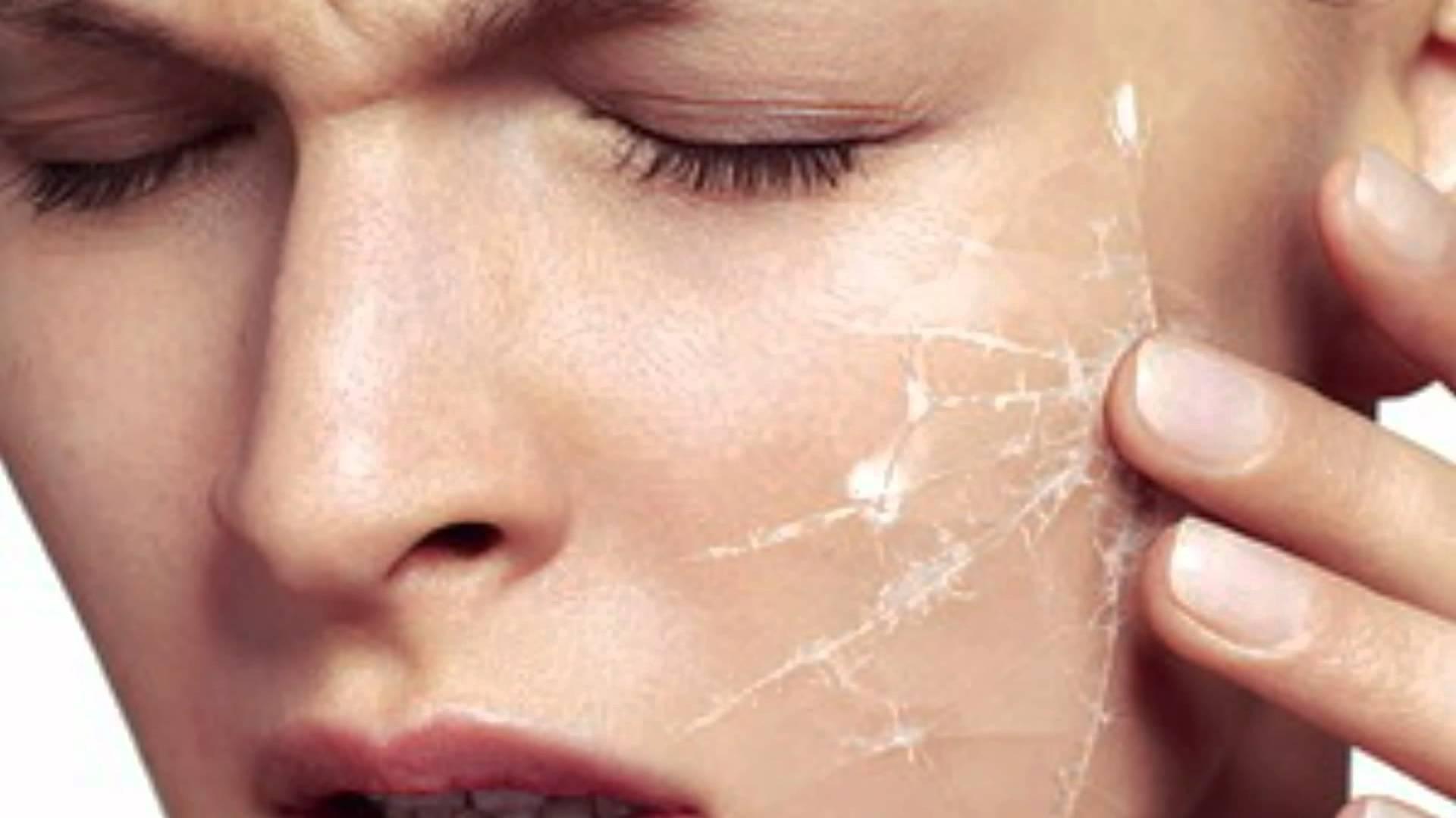 Причины шелушения кожи на лице