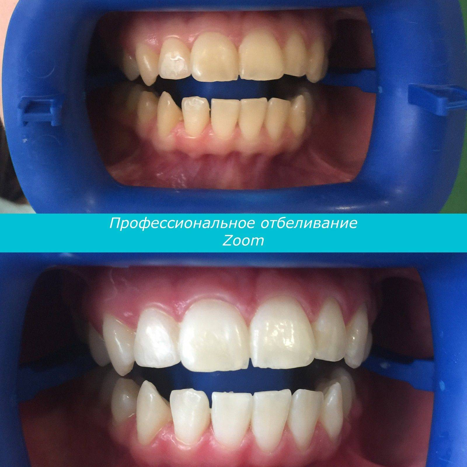 Лазерное отбеливание зубов: плюсы и минусы процедуры. вредно ли делать лазерное отбеливание зубов? на сколько хватает процедуры лазерного отбеливания зубов?