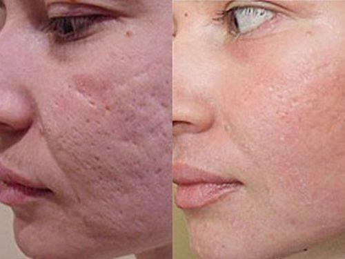 Устранение рубцов после акне на лице и теле