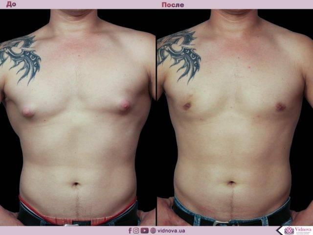 Пластика груди в лечении гинекомастии у мужчин – операция по удалению гинекомастии
