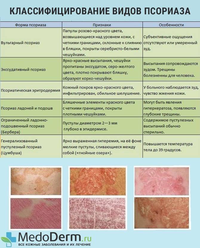 Лишай — виды, симптомы, эффективные препараты и современные способы лечения (115 фото)