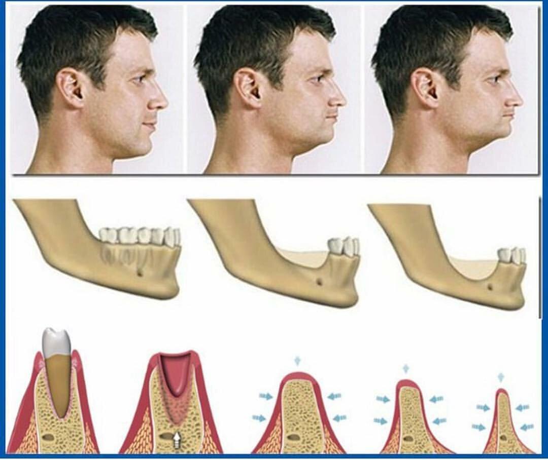 Протезирование при полном отсутствии зубов — как восстановить зубной ряд?