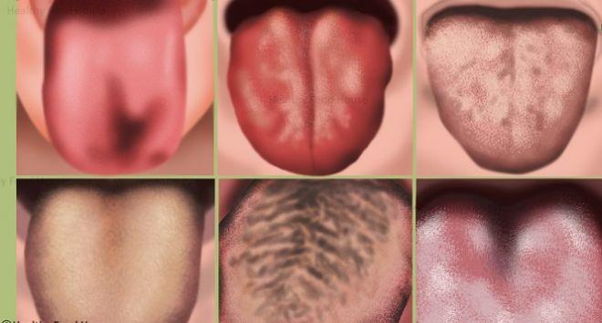 Следы от зубов на языке причины