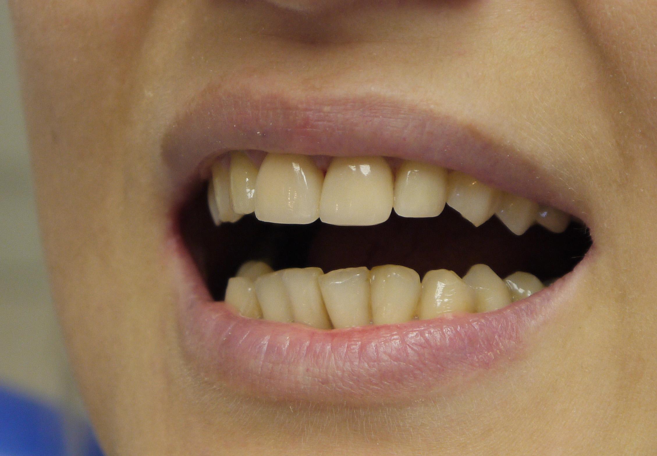 Реальные отзывы о винирах на зубы – отрицательные и положительные, фото