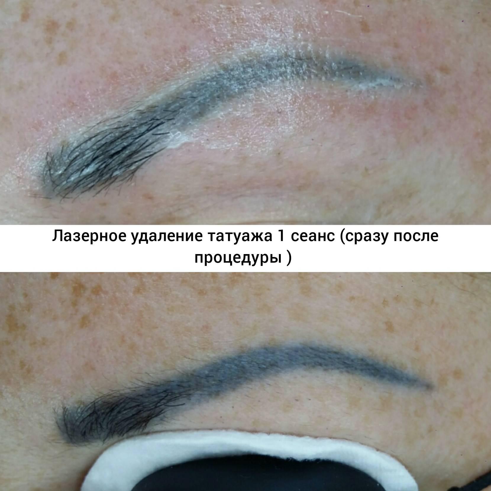 Удаление лазером татуажа бровей: фото до и после, отзывы
