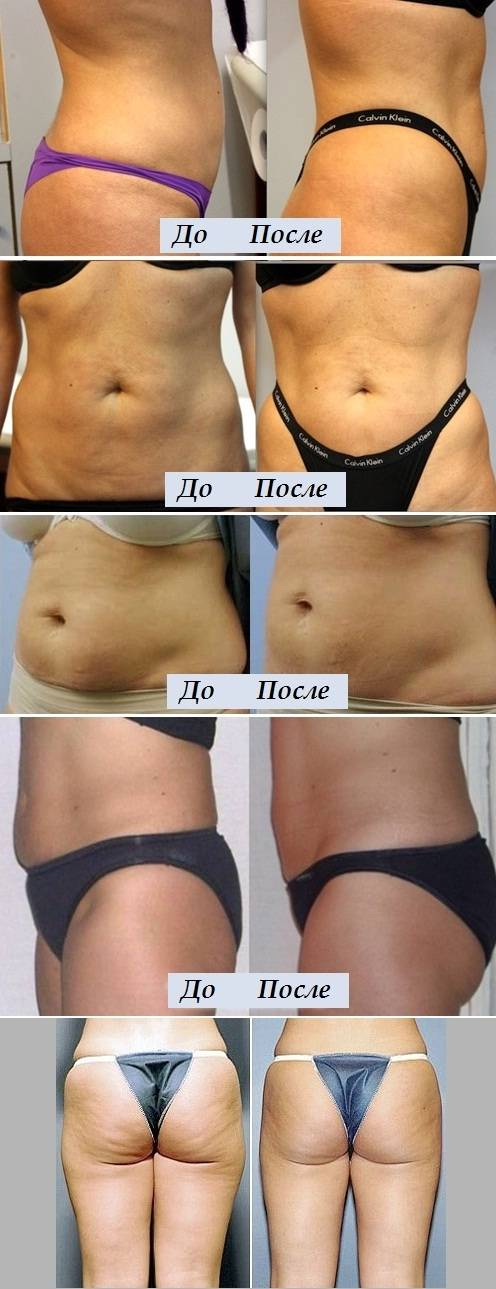 Плоский живот без особых усилий — насколько эффективны уколы для похудения
