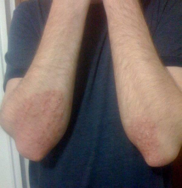 Причины сухой кожи на локтях и методы лечения